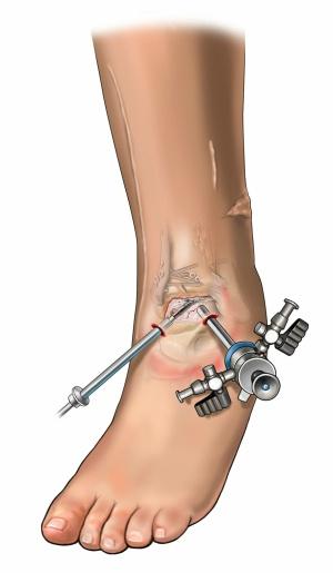 Ankle Arthroscopy Melbourne